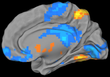 An fMRI scan showing various colored patches on a 3-D image of a brain