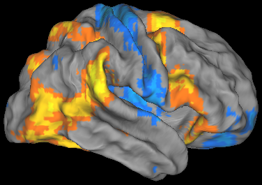 An fMRI image showing colored patches on a 3-D image of a brain