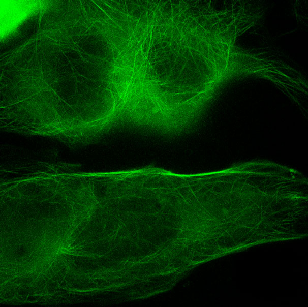 super-resolution fluorescence microscopy image of HyPer-Tau