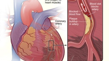 Coronary artery disease NIH