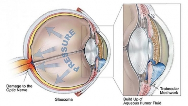 Glaucoma depiction BrightFocus Foundation