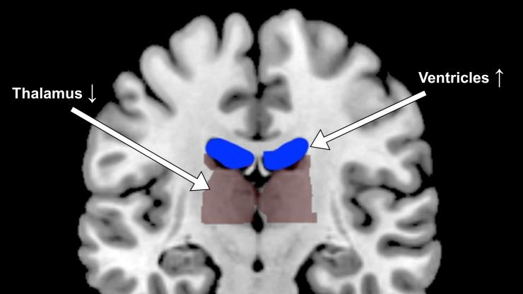 fMRI brain ventricles expand in dehydration