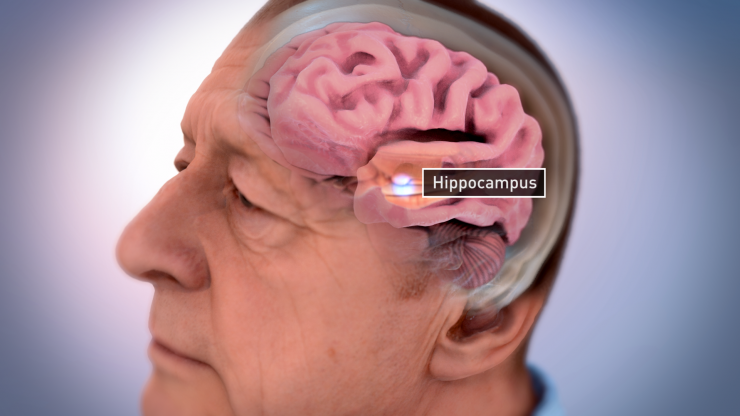 Alzheimer's brain shrinkage illustration NIA NIH