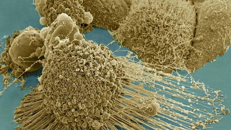 Dying cancer cell from NIH microscopy