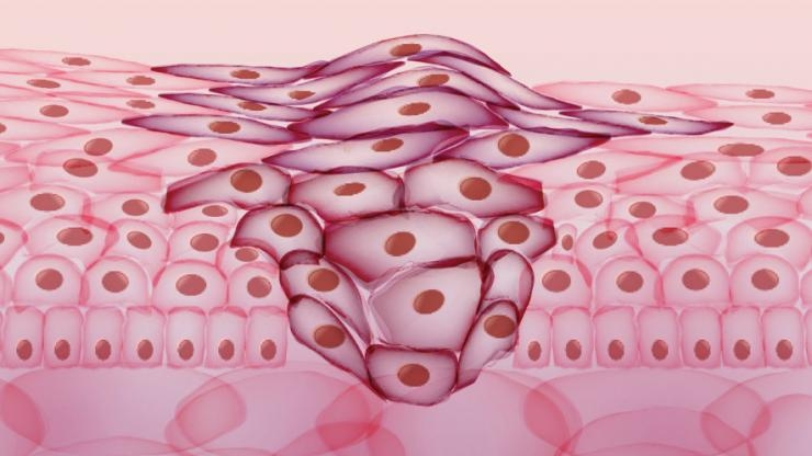 iStock cancer cells illustration