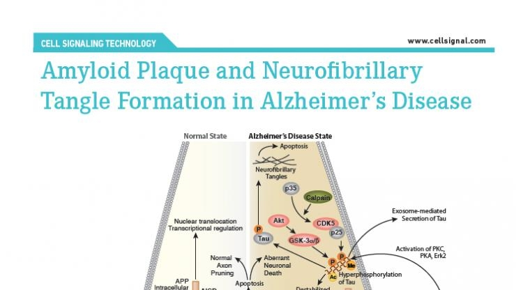 Alzheimer's diagram of biochemical processes