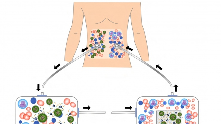 Research Horizons - Med Device - schematic removing ovarian cancer cells