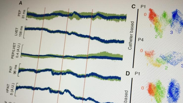 Measuring seismic vibrations and heart timing