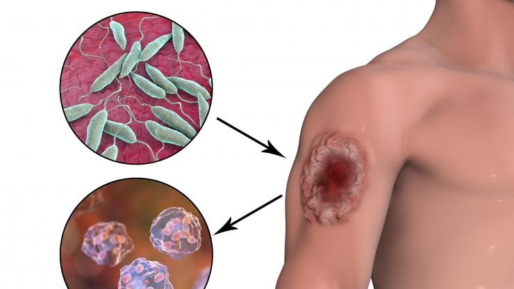 Leishmaniasis infector-disease illustration