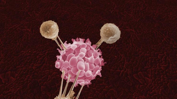 T-cells attack cancer cell, Getty Images