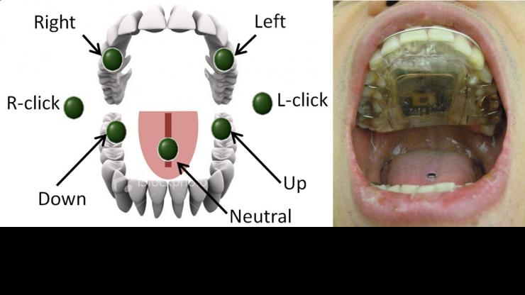 Intraoral Tongue Drive System commands